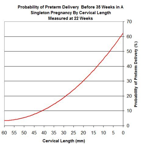 Length of Cervix vs Likelihood of Preterm Deliver.